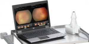 Clarity RetCam - keskosten silmänpohjakamera