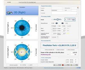 FineVision Toric/Ankoris - vahvuuslaskuri