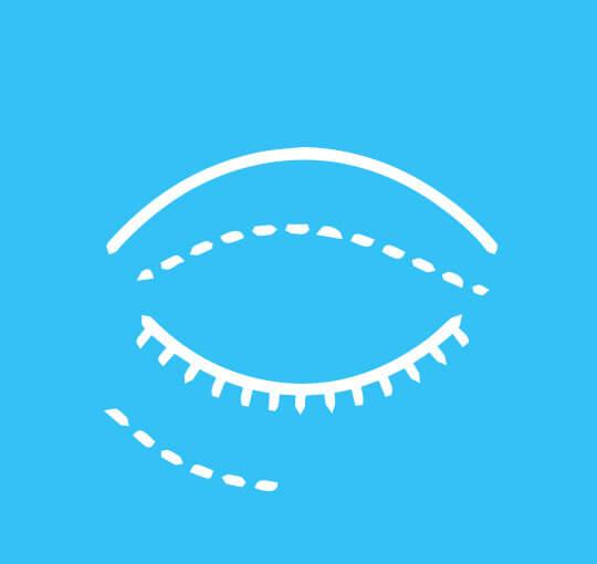 Okuloplastia