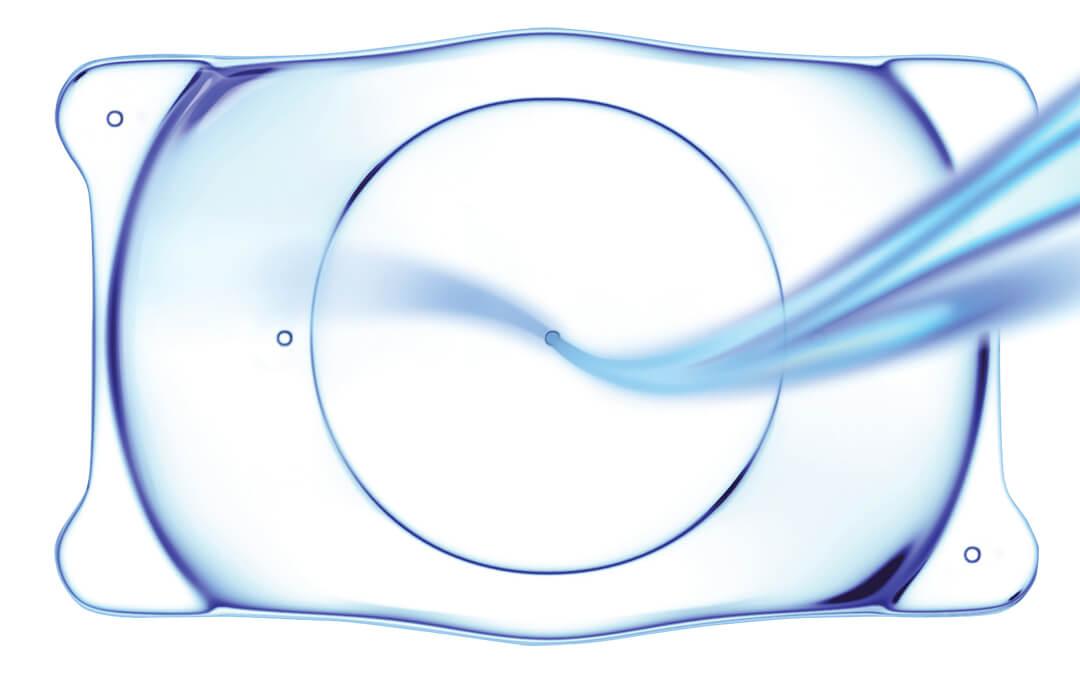 Jo miljoona Vision ICL-linssiä asennettu maailmanlaajuisesti
