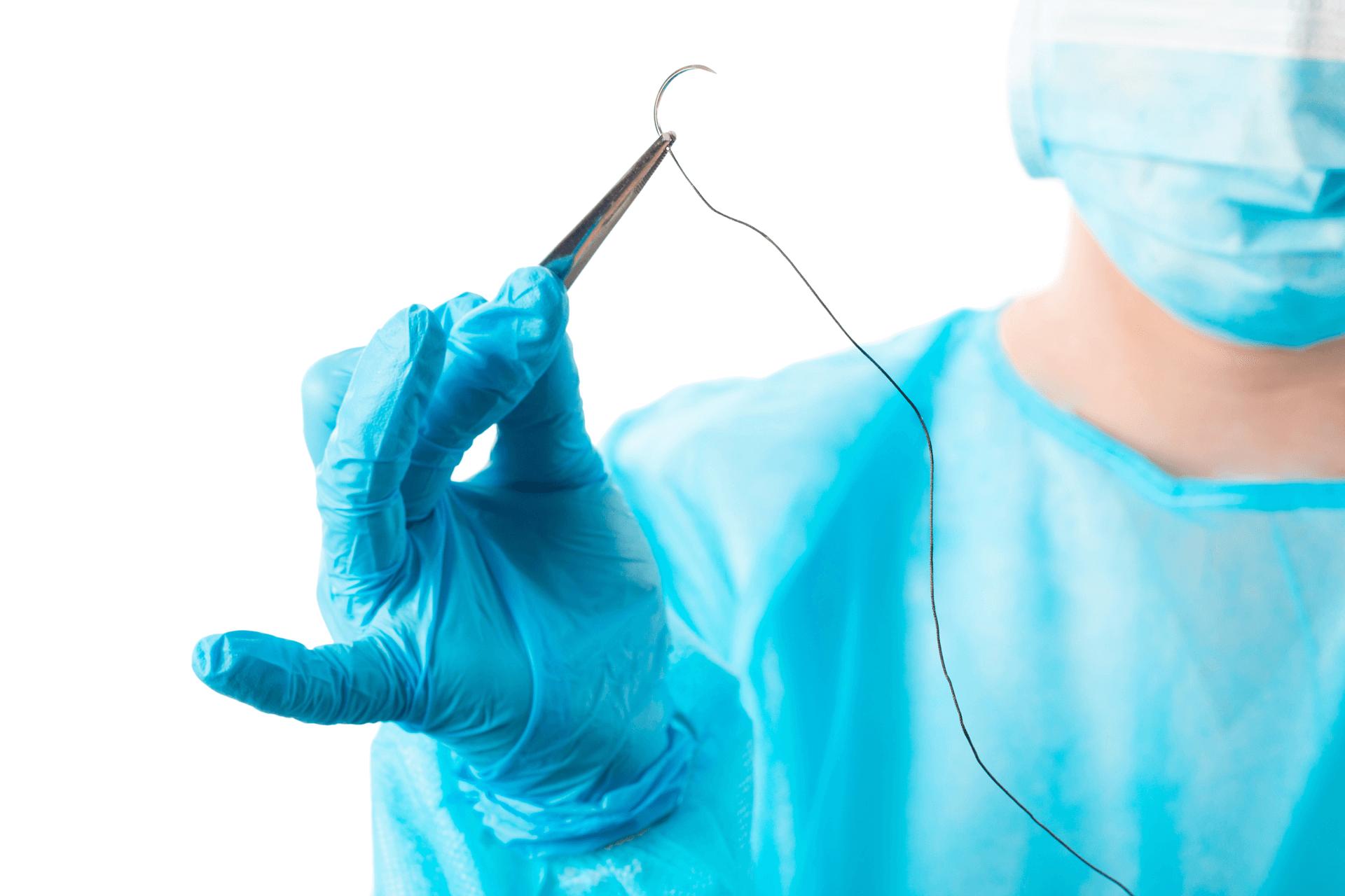 Glaukoomakirurgian ommelaine