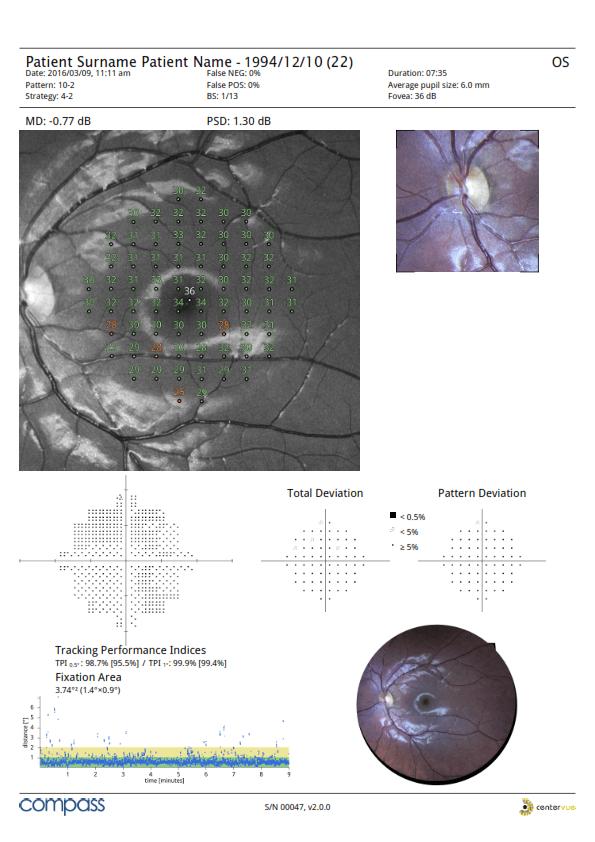 Silmänpohjakuvaus Tulokset
